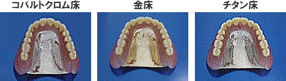 metalbase1a